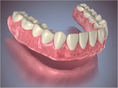 conventional-inmediate-full-denture