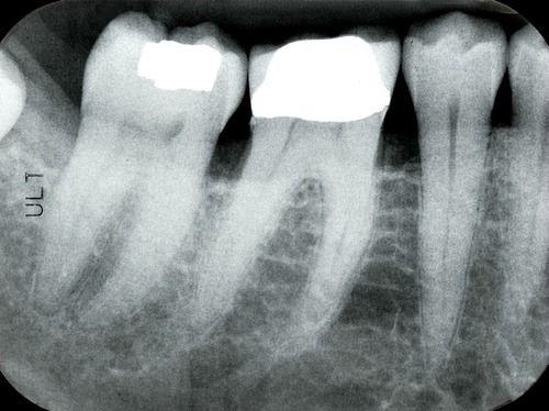 Digital-dental-periapical-xray