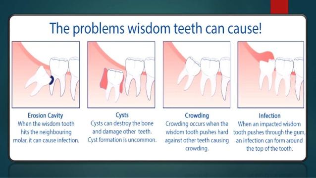 wisdom-teeth-8-638